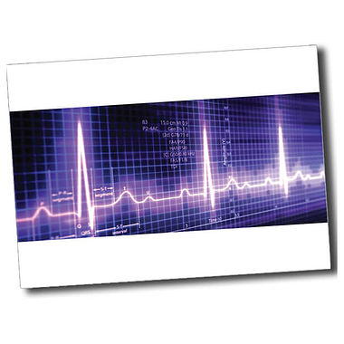 Personalised Heartbeat Postcard - White (A6)