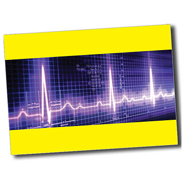 Personalised Heartbeat Postcard - Yellow (A6)